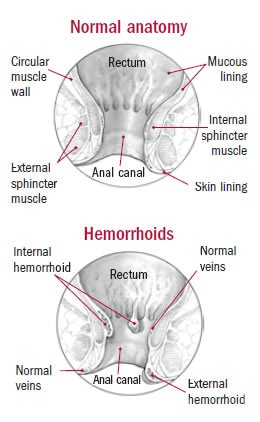 Illustration of normal rectal anatomy and hemorrhoids